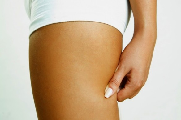 Cellulite treatment with ultrasound