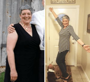 Lisa Grady before and after photo