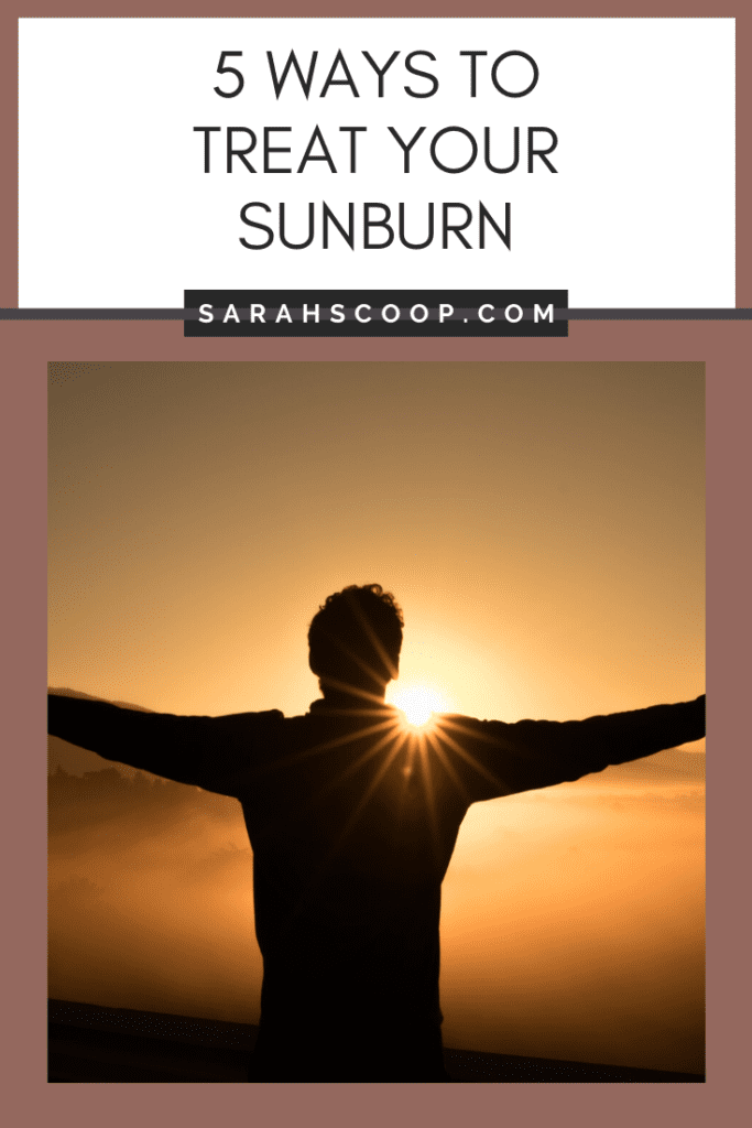 Pinterest image 5 ways to treat your sunburn